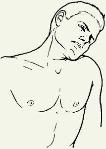 Боковые наклоны при остеохондрозе